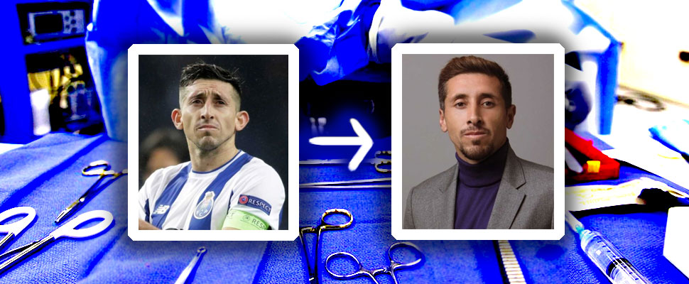 Before and after: 8 soccer players with cosmetic surgeries