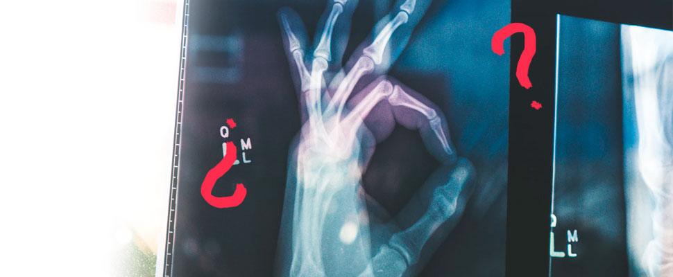 ¿Es la Osteoporosis un problema de salud pública?