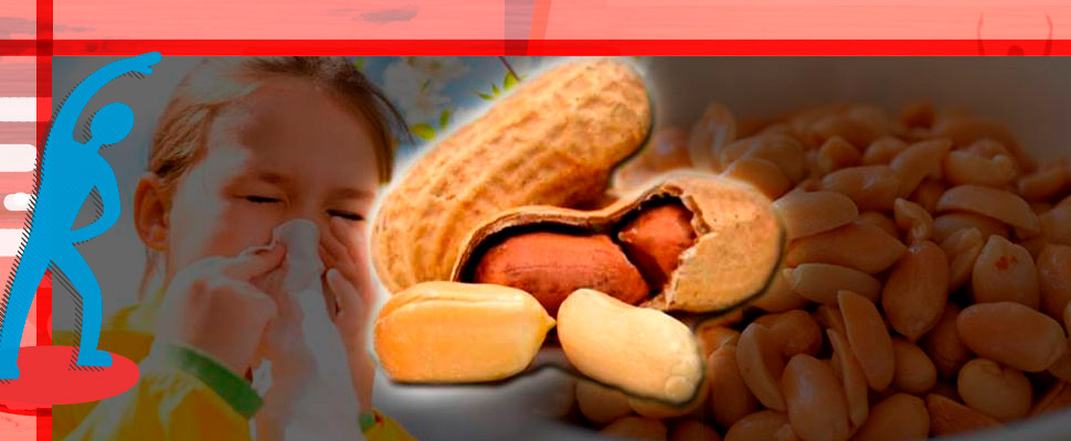 Eating peanuts during childhood reduces the risk of allergies