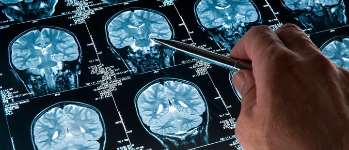Avances en Inteligencia Artificial permitirán detectar enfermedades