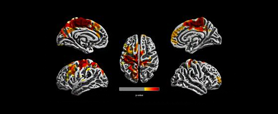 Brain images of 12-year-old children show regions of the brain in red, orange and yellow that are most affected by TRAP.