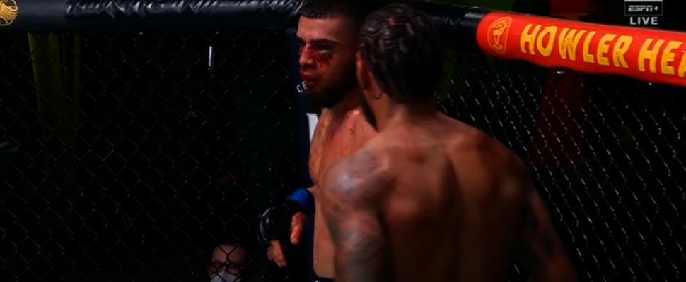 Las lesiones más impactantes de la UFC