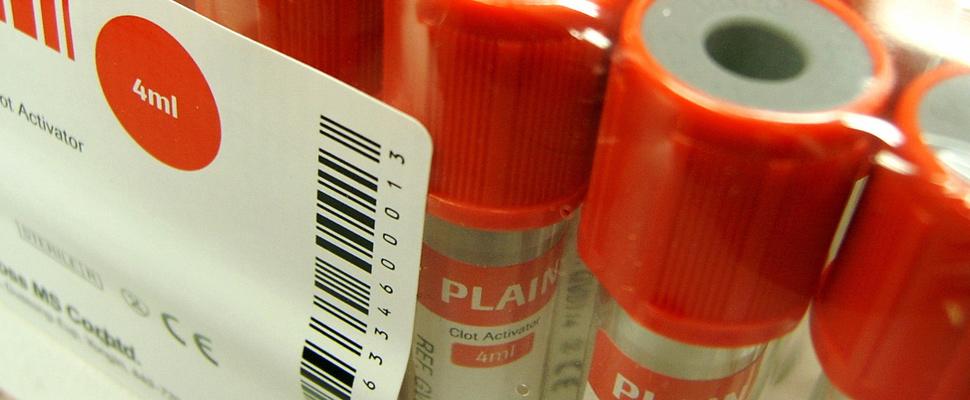 ¿Qué son realmente los medicamentos biológicos?