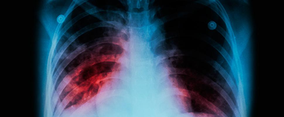 24 de Marzo: Día Mundial Contra la Tuberculosis